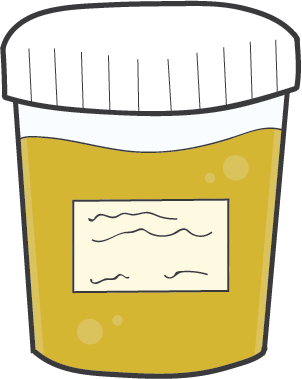 One of the ways someone can be drug tested is by urine test, where the recipient simply urinates into a cup or container of sorts and the physician takes it in for testing.